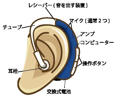 耳かけ型(BTE)タイプの詳細
