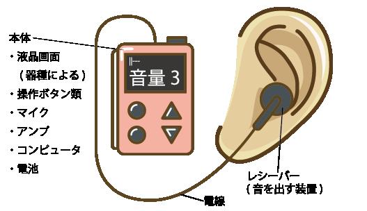 ポケット型(箱型)の詳細