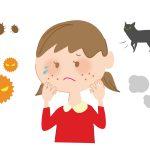 アレルギーの原因は?おもなアレルギー疾患の症状と治療法などについて