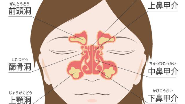 蓄膿症(副鼻腔炎)の治し方、病院での治療法は?